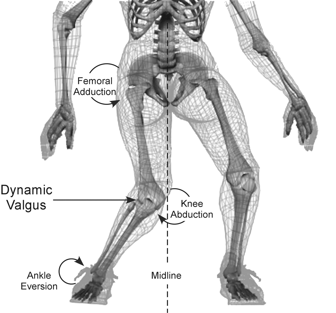 Single Leg Movement And The Lateral Sub System Articles Matt